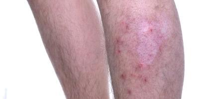 对称性皮炎和银屑病有什么区别